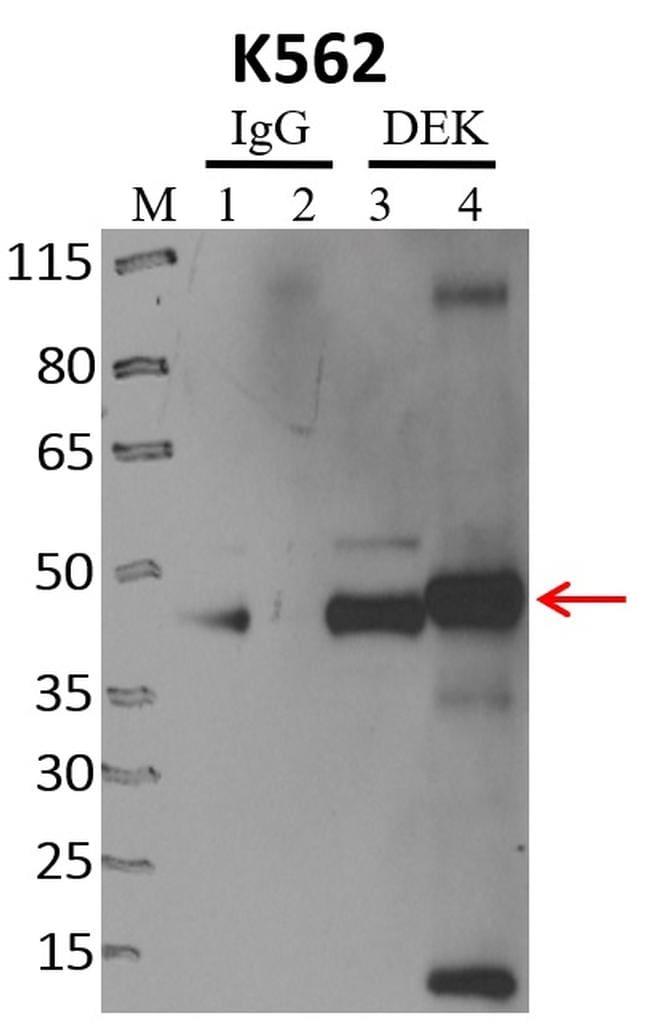 DEK Antibody in Immunoprecipitation (IP)