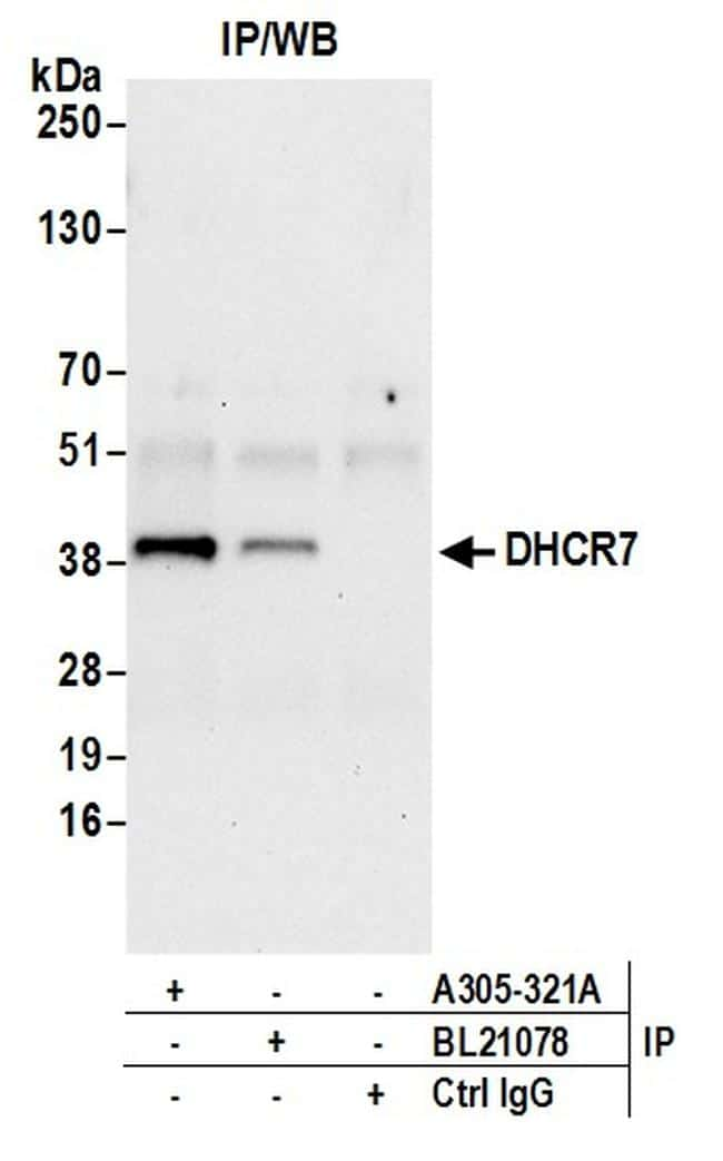 DHCR7 Antibody in Immunoprecipitation (IP)