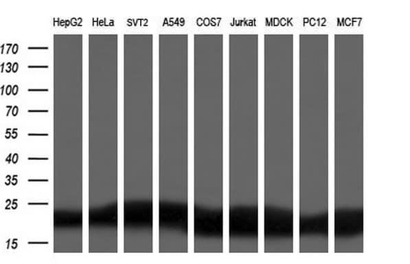 DHFR Antibody in Western Blot (WB)