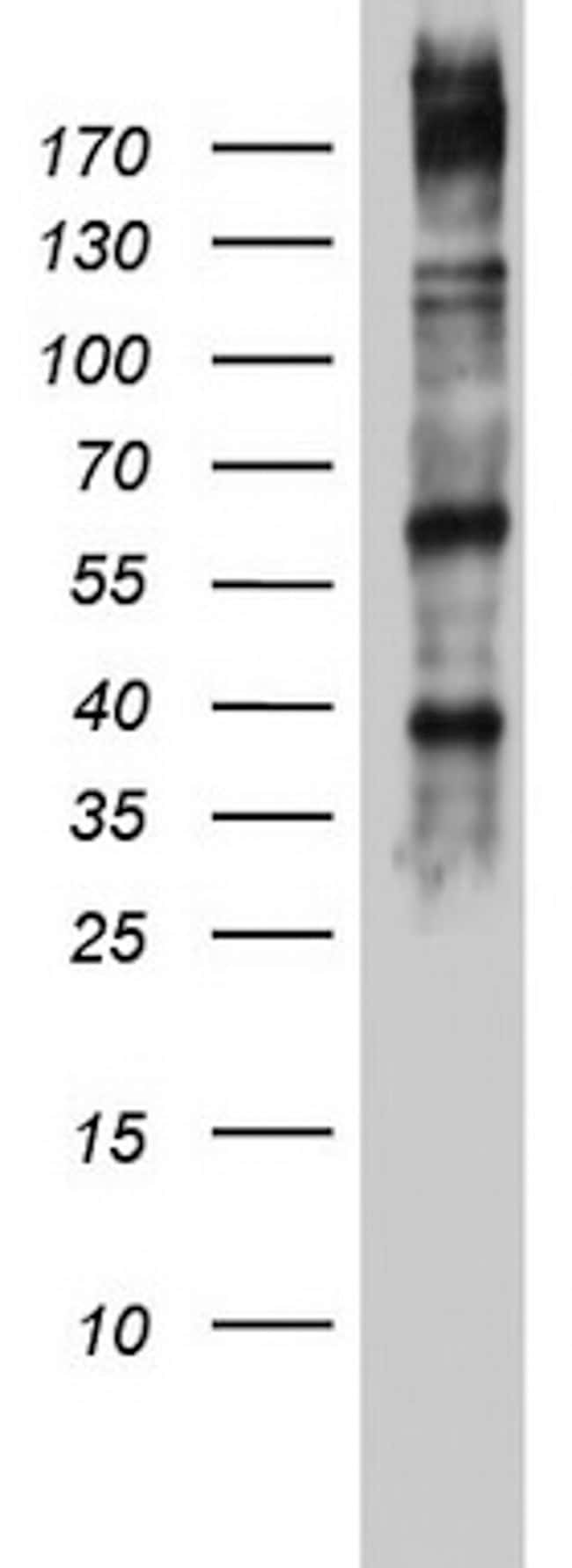 DICER1 Antibody in Western Blot (WB)