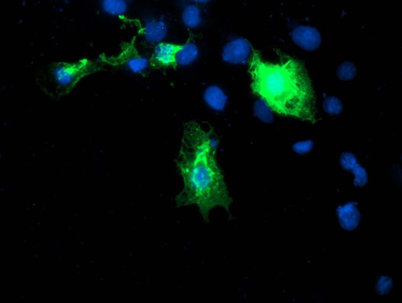 DIXDC1 Antibody in Immunofluorescence (IF)