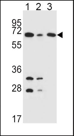 DLAT Antibody in Western Blot (WB)