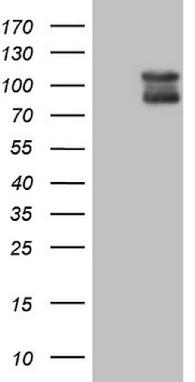 DLG4 Antibody in Western Blot (WB)