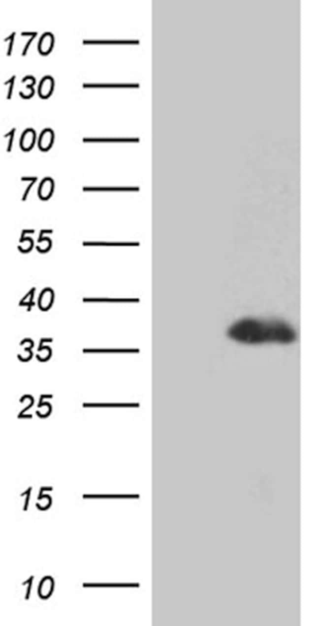 DLX1 Antibody in Western Blot (WB)