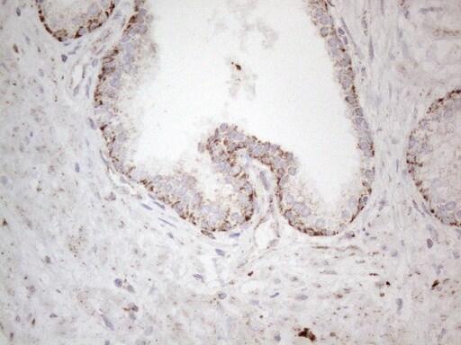 DLX4 Antibody in Immunohistochemistry (Paraffin) (IHC (P))