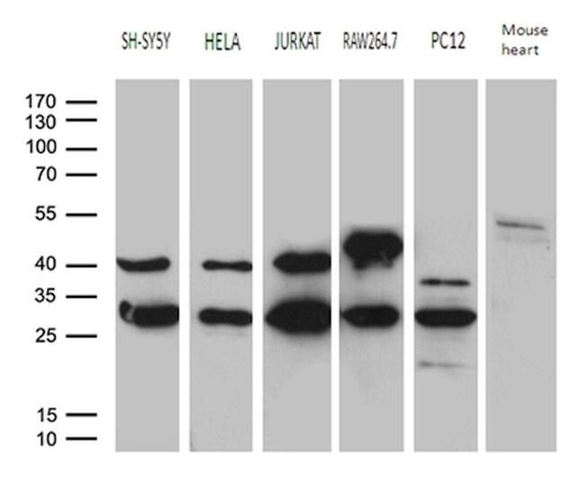 DNAJB6 Antibody in Western Blot (WB)