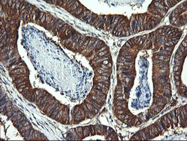 DNM1L Antibody in Immunohistochemistry (Paraffin) (IHC (P))