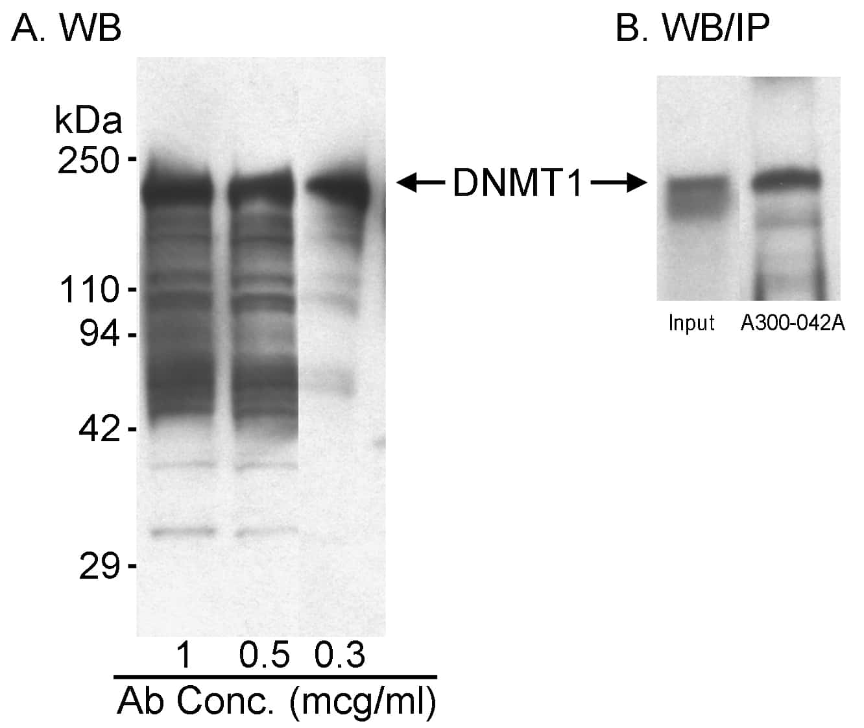 DNMT1 Antibody in Western Blot (WB)