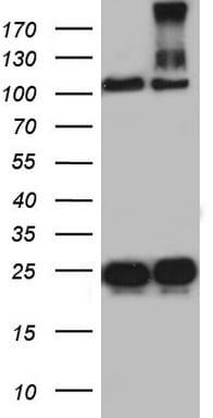 DOCK8 Antibody in Western Blot (WB)