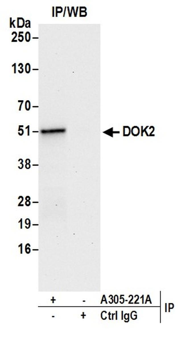 DOK2 Antibody in Western Blot (WB)