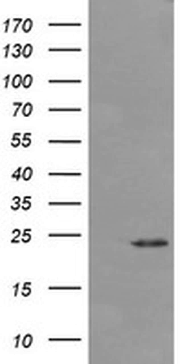DPCD Antibody in Western Blot (WB)