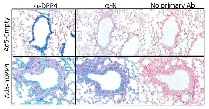 DPP4 Antibody in Immunohistochemistry (Paraffin) (IHC (P))