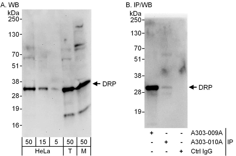 DRP Antibody in Western Blot (WB)