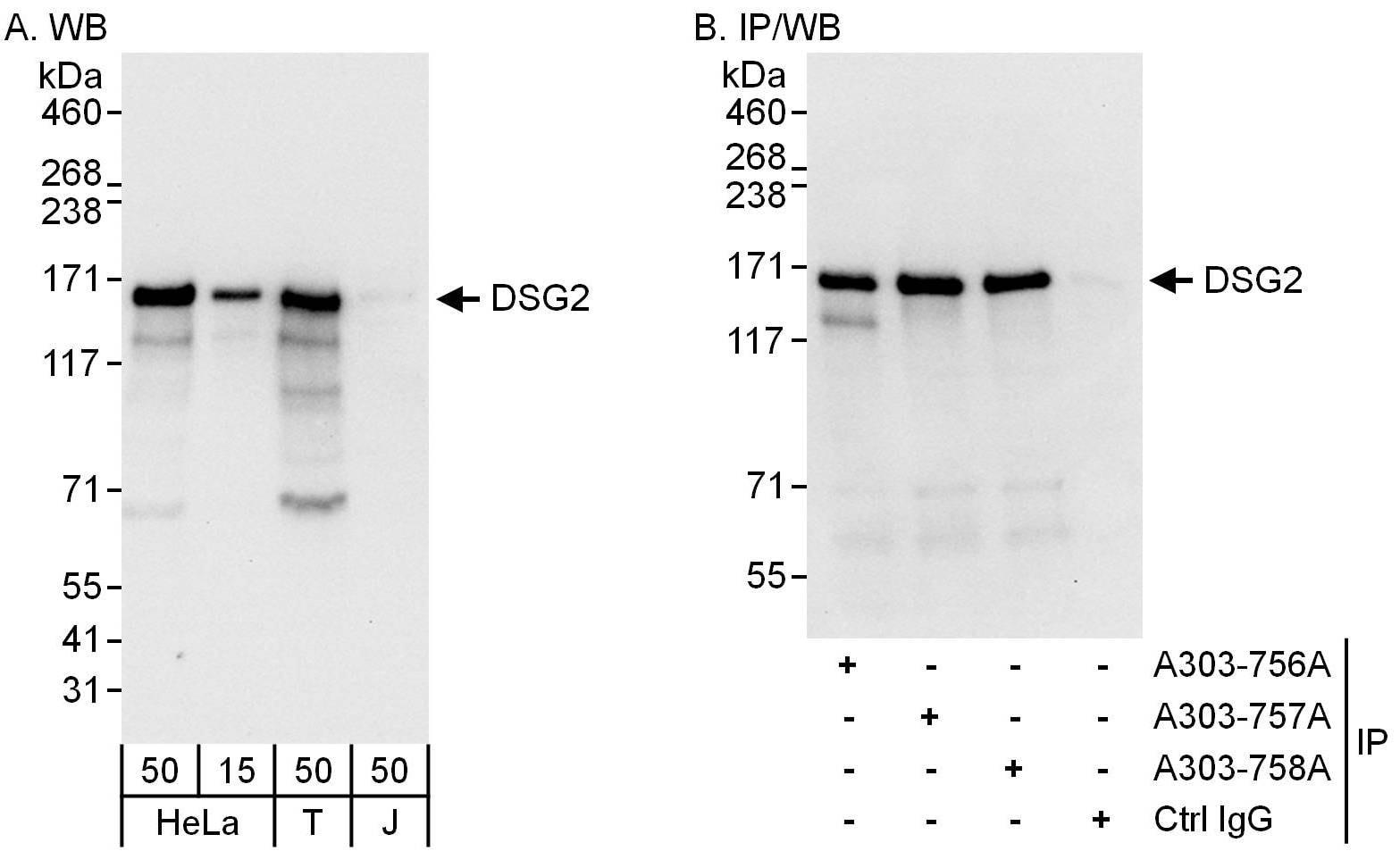 DSG2 Antibody in Western Blot (WB)
