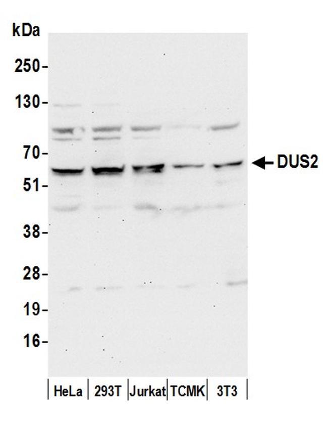 DUS2/DUS2L Antibody in Western Blot (WB)