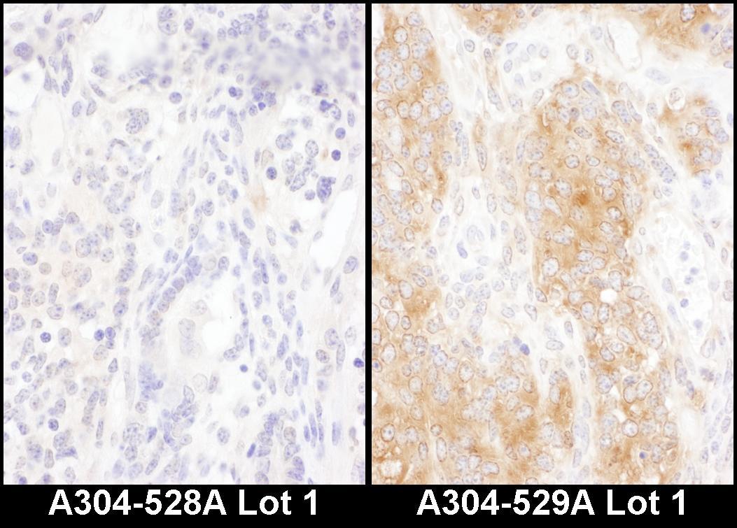 DYNC1I2 Antibody in Immunohistochemistry (IHC)