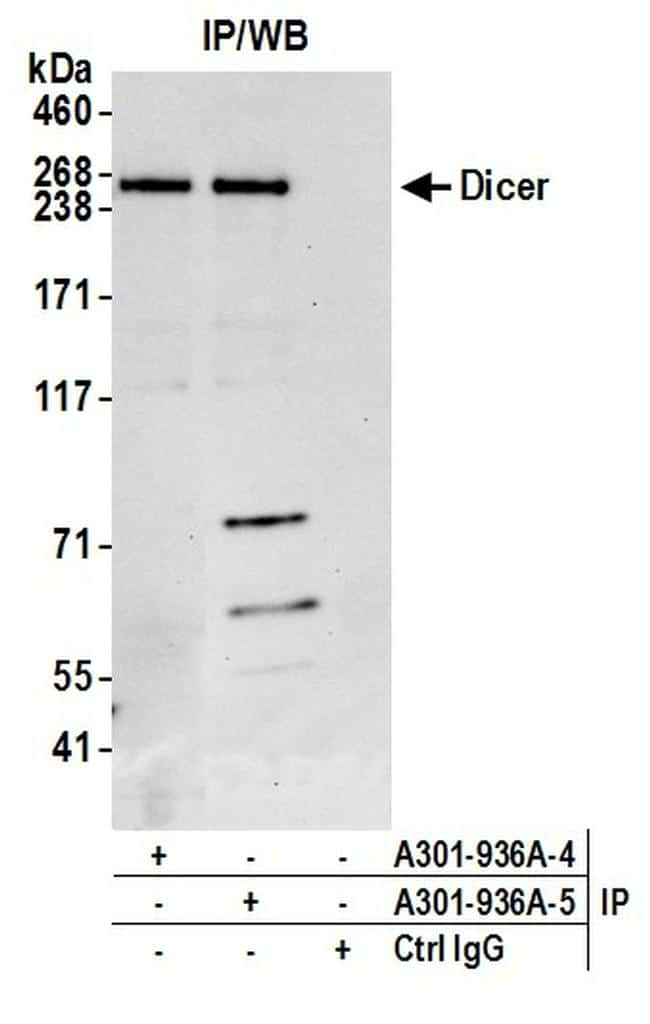 Dicer Antibody in Western Blot (WB)