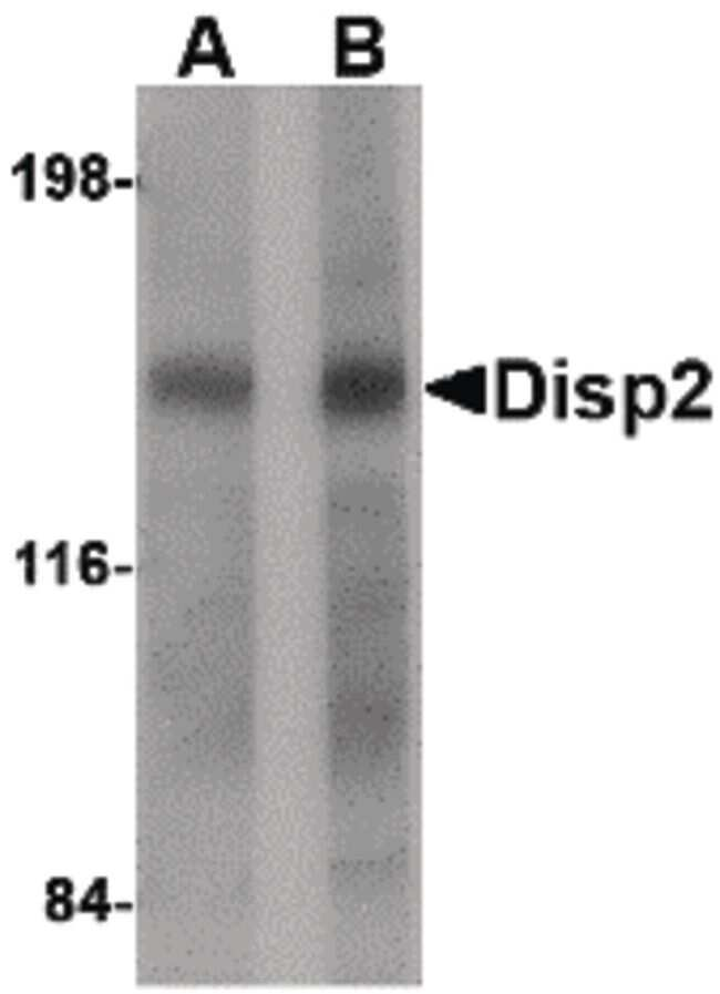 DISP2 Antibody in Western Blot (WB)