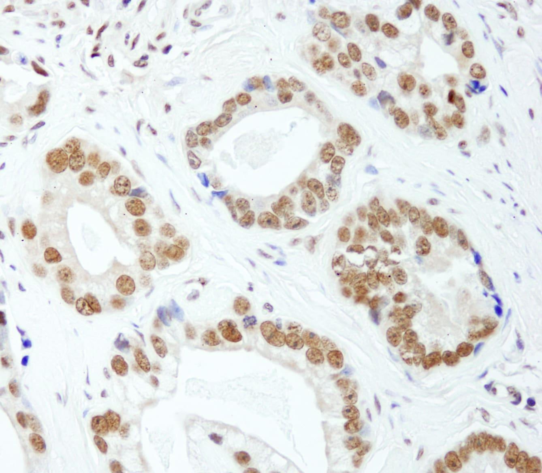 E1B-AP5 Antibody in Immunohistochemistry (IHC)