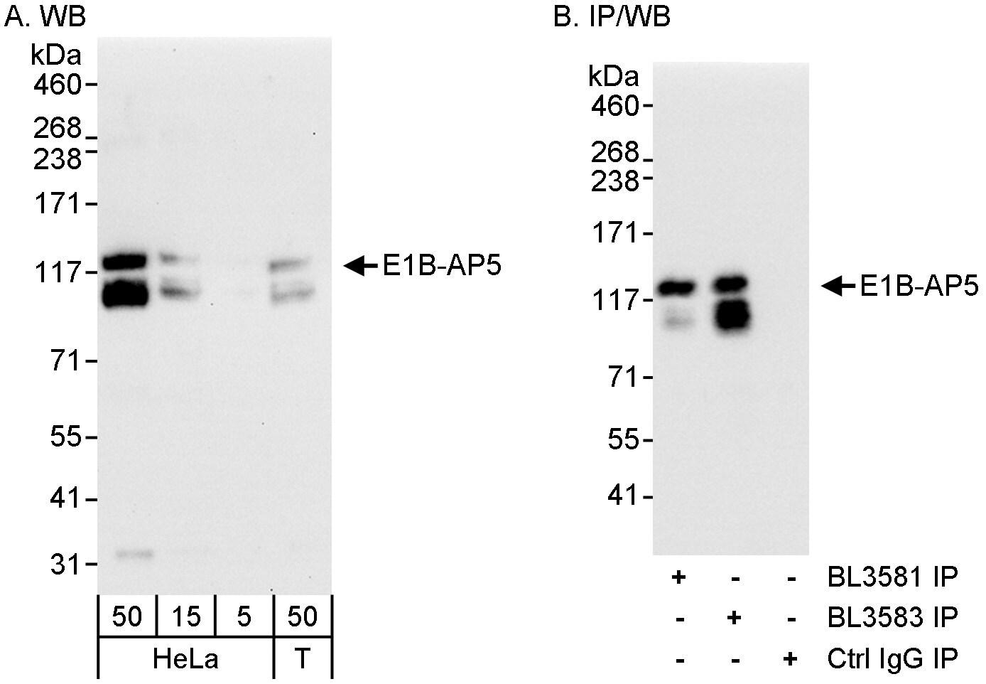 E1B-AP5 Antibody in Western Blot (WB)