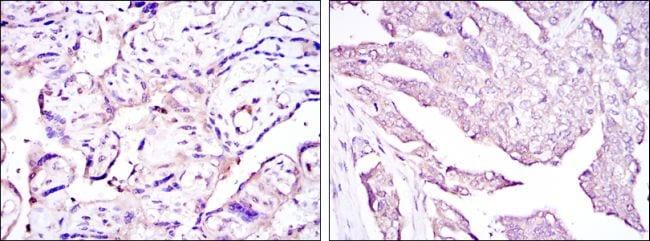 HPV Type 16 E7 Antibody in Immunohistochemistry (IHC)