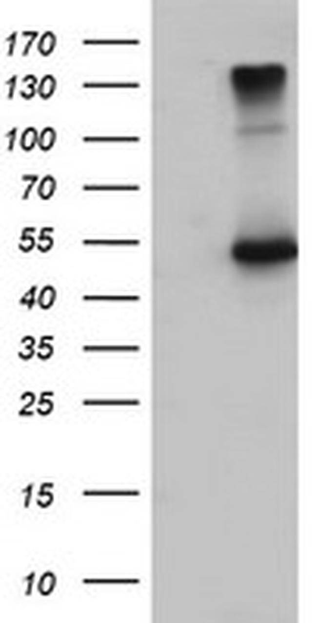EFEMP1 Antibody in Western Blot (WB)