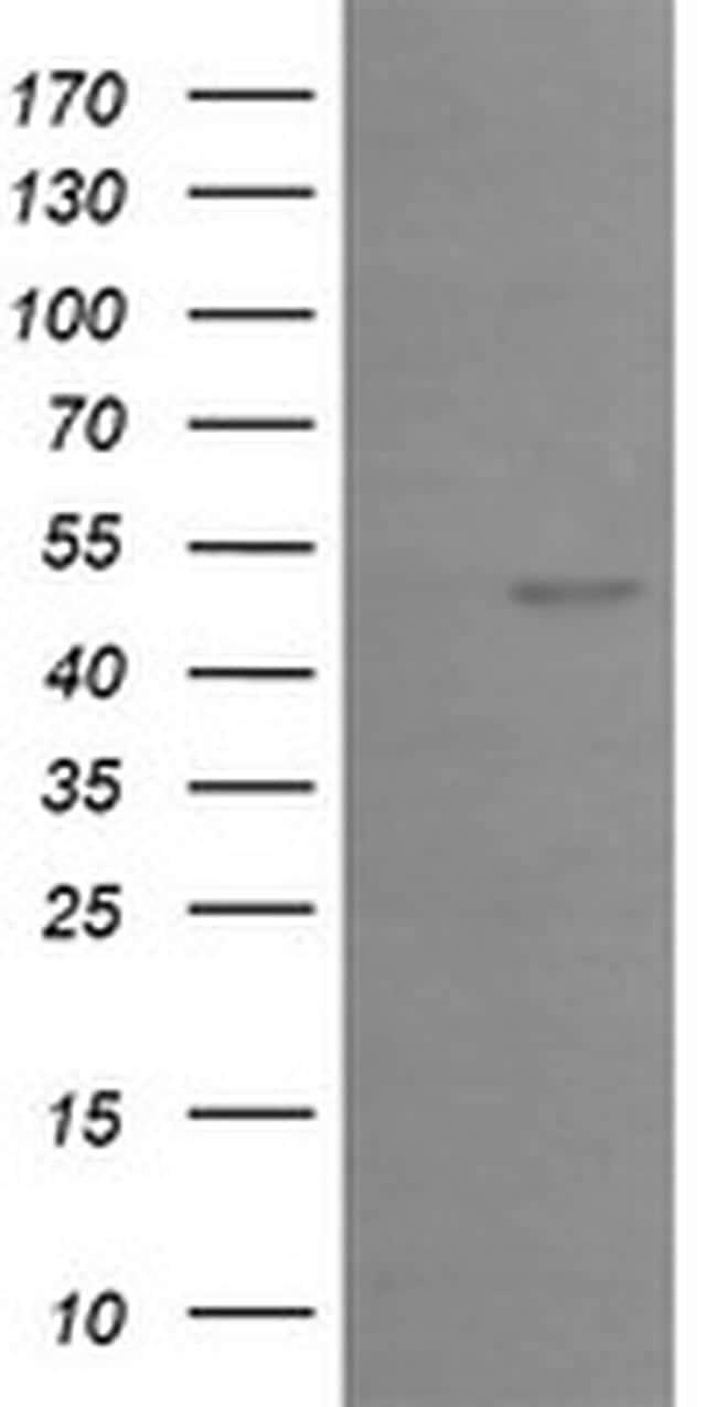 EGR2 Antibody in Western Blot (WB)