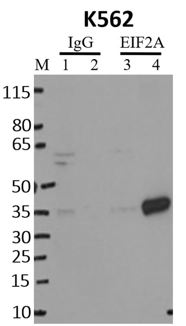 EIF2S1 Antibody in Immunoprecipitation (IP)