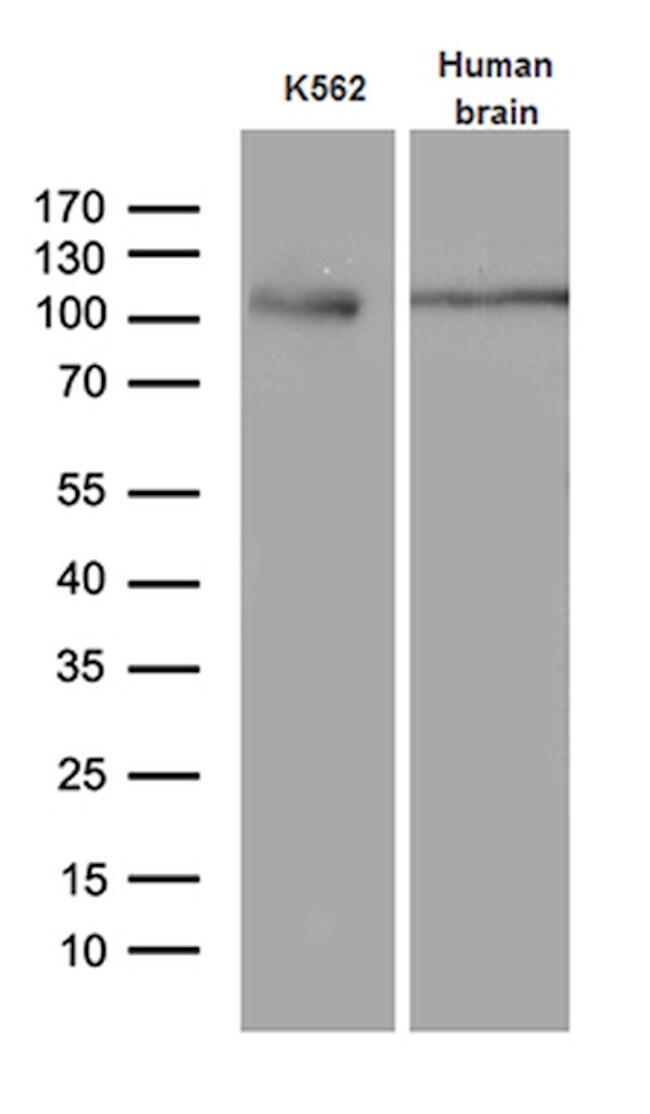 EIF2C1 Antibody in Western Blot (WB)
