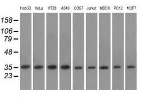 EIF2S1 Antibody in Western Blot (WB)