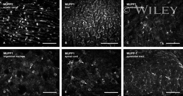MUPP1 Antibody