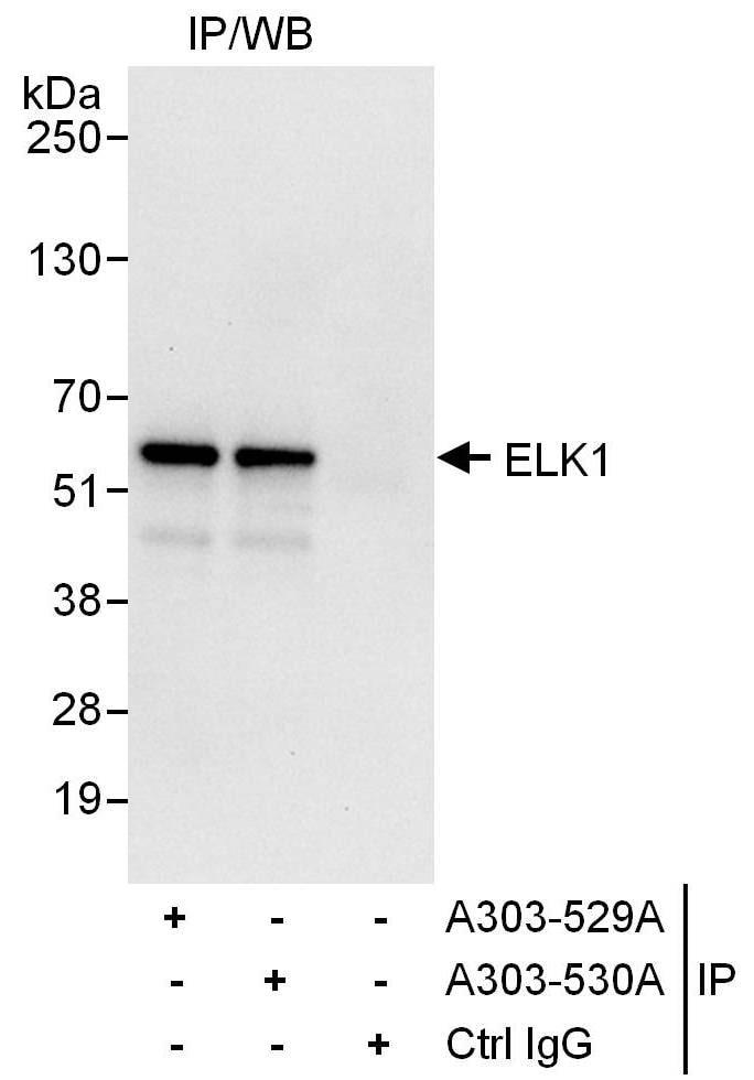 ELK1 Antibody in Immunoprecipitation (IP)
