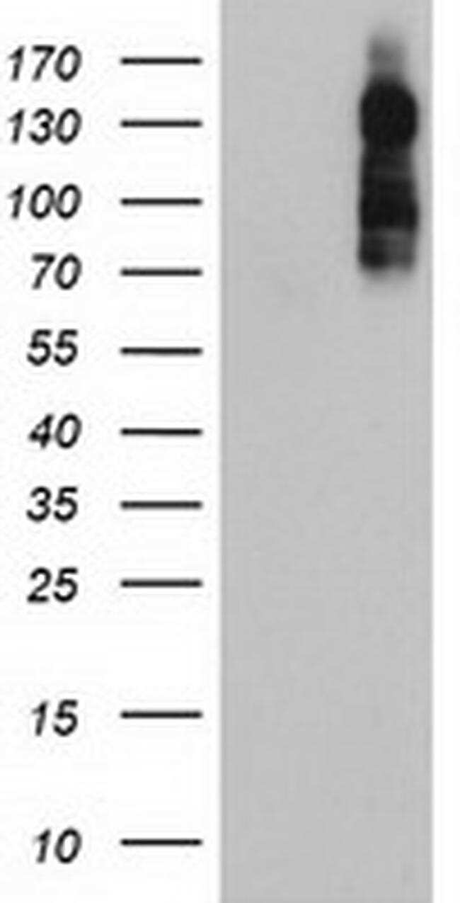 ENPEP Antibody in Western Blot (WB)