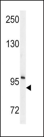 ENPP2 Antibody in Western Blot (WB)
