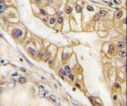 EphB2 Antibody in Immunohistochemistry (IHC)