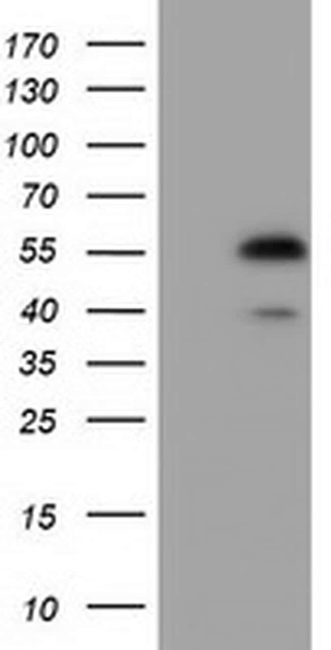 EPHX2 Antibody in Western Blot (WB)