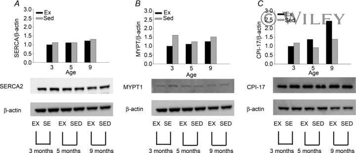SERCA2 ATPase Antibody