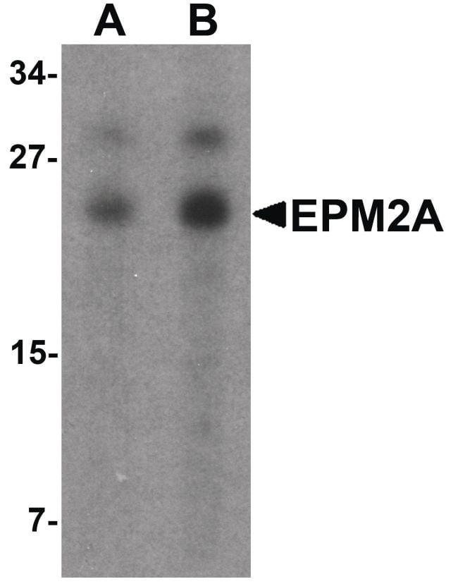 EPM2A Antibody in Western Blot (WB)