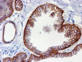 ERBB2 Antibody in Immunohistochemistry (Paraffin) (IHC (P))