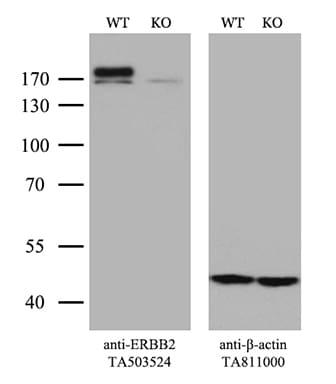 ERBB2 Antibody in Knockout