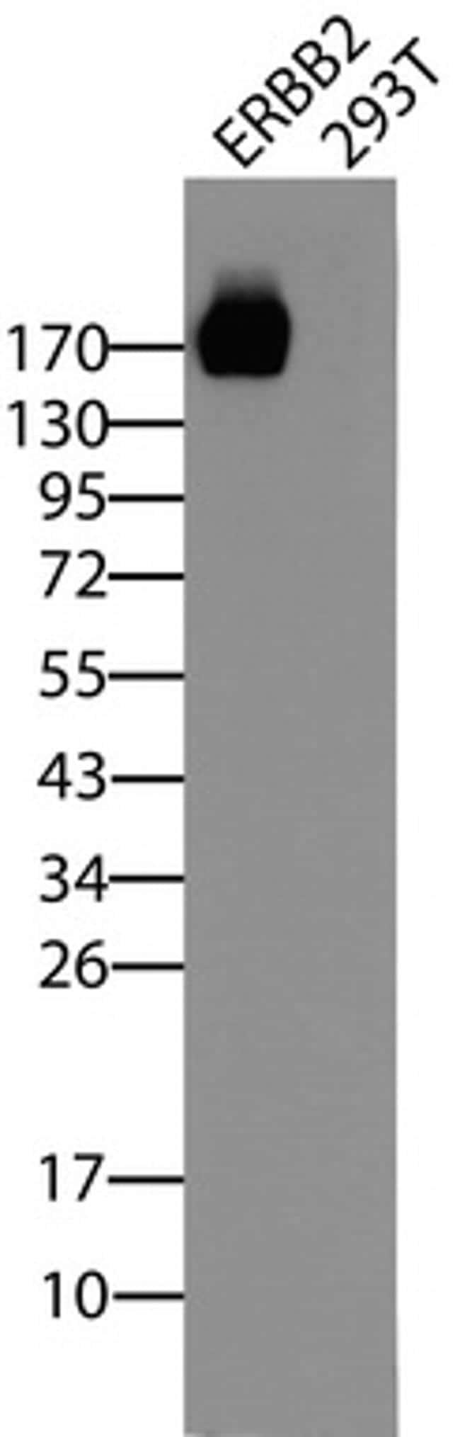 ERBB2 Antibody in Western Blot (WB)