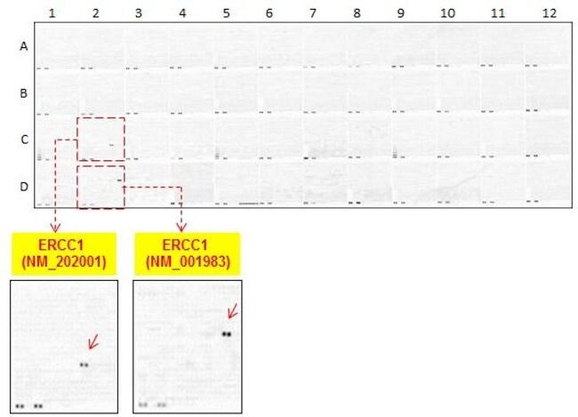 ERCC1 Antibody in Peptide array (ARRAY)