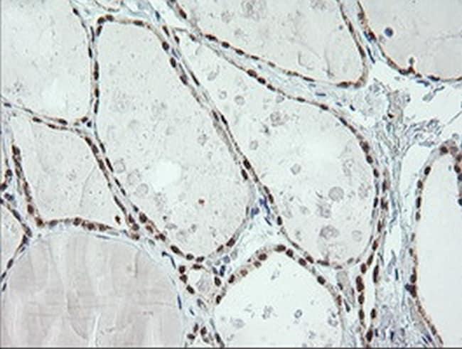 ERCC1 Antibody in Immunohistochemistry (Paraffin) (IHC (P))