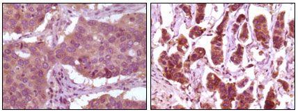 ERK2 Antibody in Immunohistochemistry (IHC)