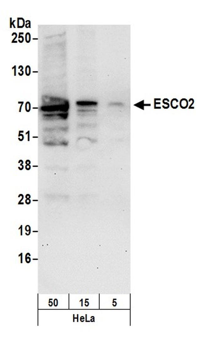 ESCO2 Antibody in Western Blot (WB)