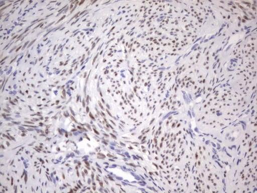 ESR1 Antibody in Immunohistochemistry (Paraffin) (IHC (P))