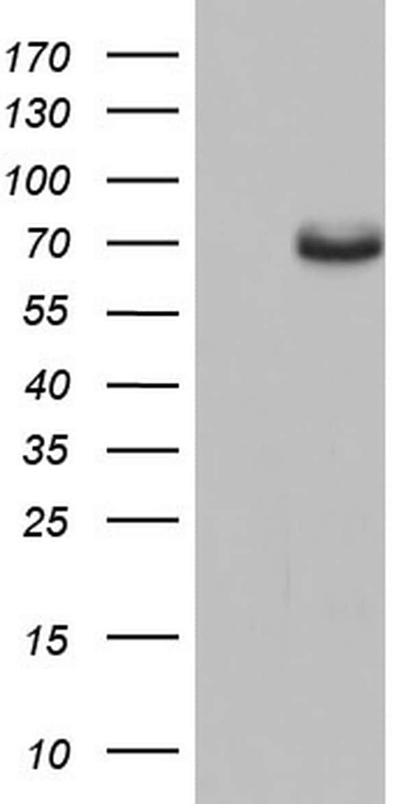 ESR1 Antibody in Western Blot (WB)