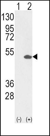 ETV4 Antibody in Western Blot (WB)