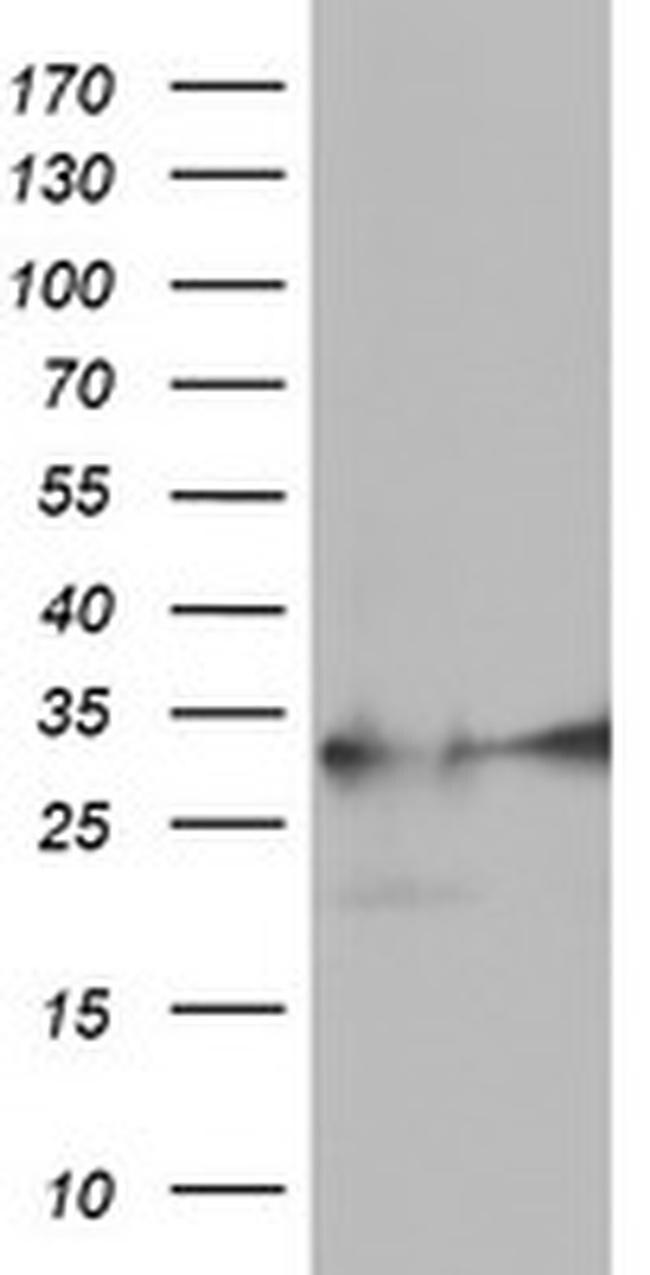 EXOSC7 Antibody in Western Blot (WB)