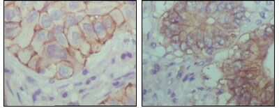 EphB1 Antibody in Immunohistochemistry (IHC)